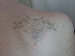 Tattoo removal Pure & Beautiful in Berlin